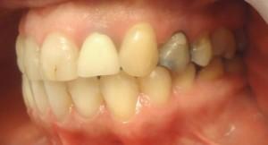 3 - Vista lateral izq ,corona pieza 2.2 de otro color, restauraciones varias en PM filtradas