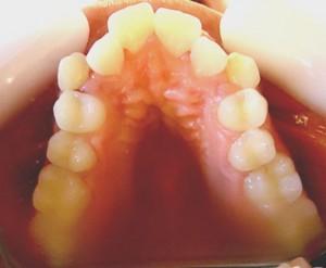 4-Foto inicial vista oclusal max sup. Se observa importante apiñamiento para 13 y 23