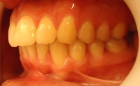 4 - Foto inicial lateral izq en oclusion