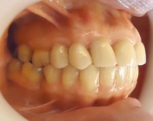 5 - Vista lateral derecho con correcion de mordida cruzada