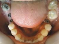 5 - Vista oclusal max inf con implantes colocados en piezas 3.6, 4.6 y 4.7