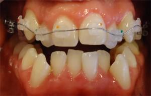 6-Comienzo de tratamiento. Armado max sup BKT esteticos de porcelana