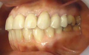6 - Vista lateral izq coronas hasta PM