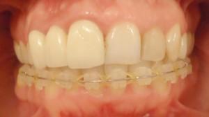 7 - Colocacion de ortodoncia solo max inf para alinear y nivelar.Brackets esteticos