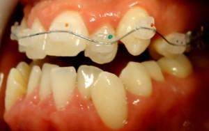 7-Vista lateral izq con exodoncia pieza 2.4, comienzo de la alineacion
