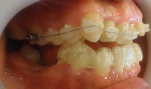 7- Vista lateral izq. Corona provisoria en pieza 1.2 hasta finalizar el tratamiento