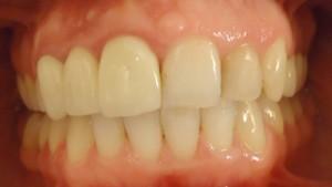 9 - Vista de frente en oclusion con tratamiento de ortodoncia, solo en max inf, finalizado