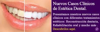 Casos clínicos estético dentales