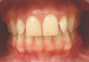 1- Foto inicial vista de frente con diastemas y giroversion de laterales