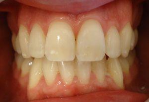 14- Finalizacion tratamiento superior