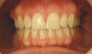 14-Vista frontal tratamiento terminado