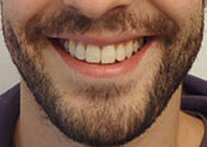 19-Sonrisa despues