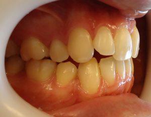 2-Lateral derecho observando relacion canina y clase molar