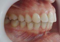 24-Vista lateral derecho final tratamiento