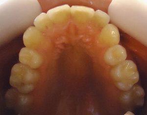 4- Vista oclusal maxilar superior, rotacion y apiñamiento de incisivos