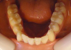 5-vista oclusal maxilar inferior