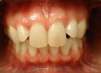 7-Vista frontal avance del tratamiento