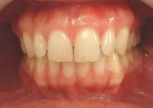 8- Vista de frente secuencia de tratamiento