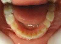22- Vista inferior erupcion de premolares