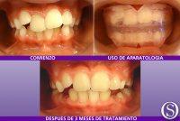 8b-Primeros--3-meses-de-tratamiento