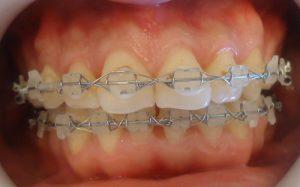 10-Ambos maxilares totalmente alineados