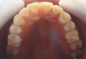 14-Vista oclusal maxilar superior finalizado