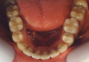 15-Vista oclusal maxilar inferior finalizado