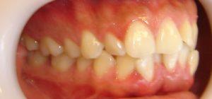 2- Vista lateral derecho .Clase I molar y ausencia de relacion canina x falta pieza 1.3.