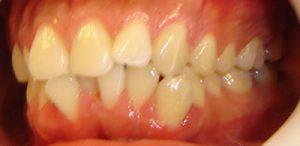 3- vista lateral izquierda clase I molar y alteracion relación canina