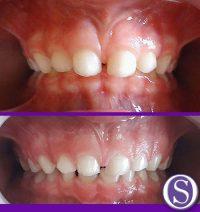 12- Inicial y evolucion viendo ampliacion de arcadas dentarias