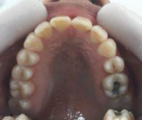 19- Vista oclusal maxilar superior alineado