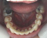 20-Vista oclusal maxilar inferior alineado