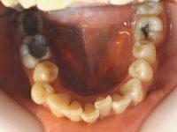 4-Vista oclusal del maxilar inferior con apiñamiento