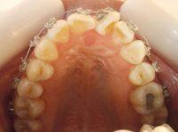 5-Vista oclusal del maxilar superior con apiñamiento y giroversiones