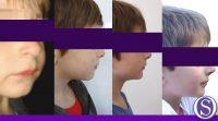 6 - Vista del perfil en evolución
