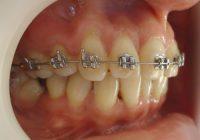 7-Vista lateral derecha del progreso del tratamiento