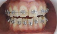 9-Armado maxilar inferior