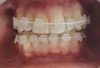 13- Vista frontal en proceso del alineado inferior