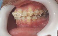 17-Vista lateral de gomas intermaxilares
