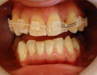 9- Vista frontal evolucion del tratamiento